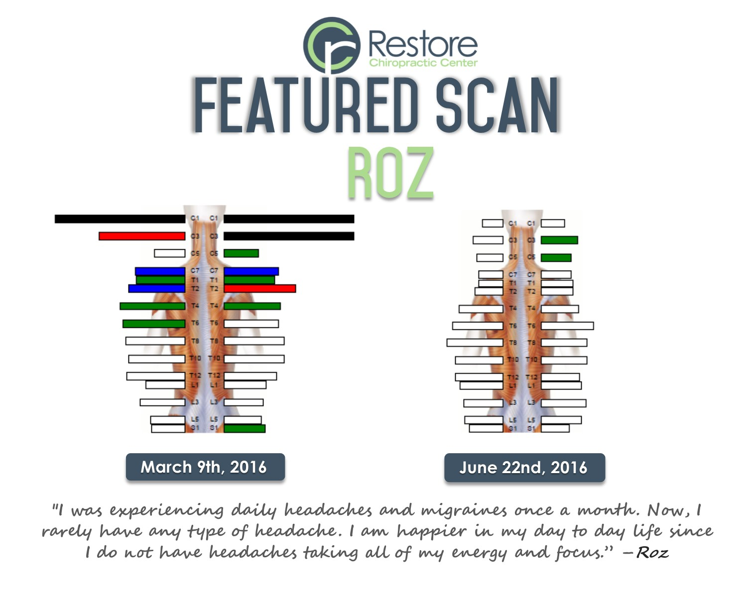 Scan of the week- Roz
