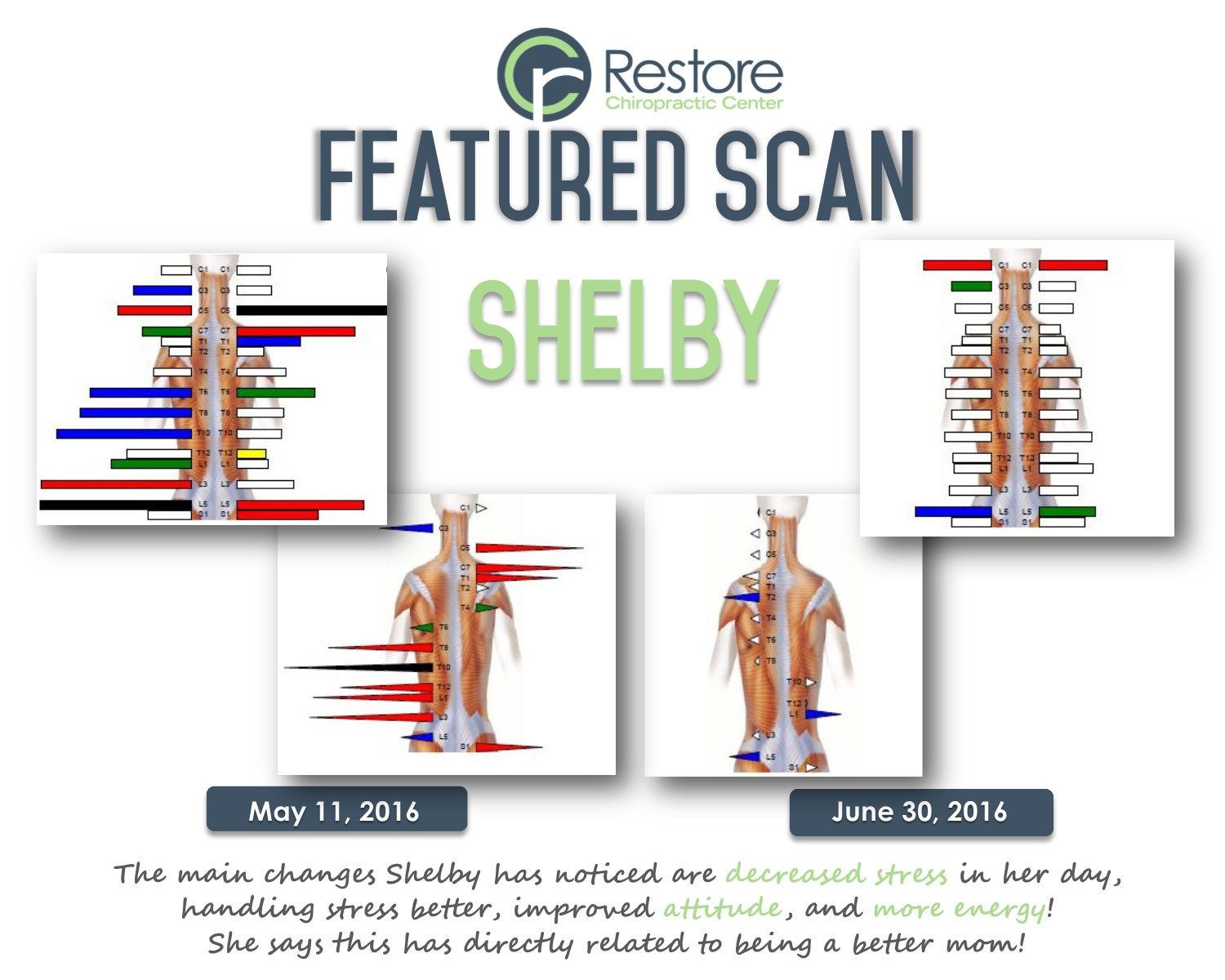 Scan of the week- Shelby